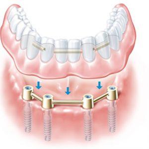 Dental Anja Kastav Rijeka Fiume implantati povezani s preckom