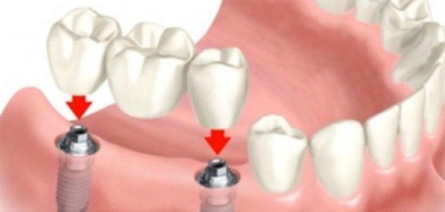 Dental Anja Kastav Rijeka Fiume vise implatanata
